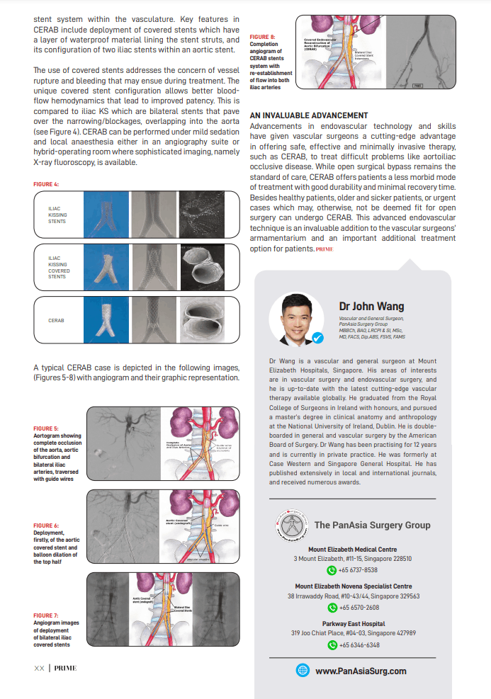 - Exploring covered Endovascular reconstruction of the aortic bifurcation - PanAsia Surgery, Singapore September 2021